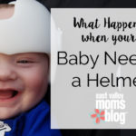 What Happens When Your Baby Needs a Helmet