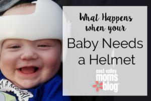 what-happens-when-your-baby-needs-a-helmet-copy