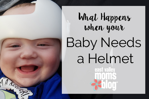 baby-needs-a-helmet